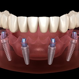 all on 4 dental implants inserted