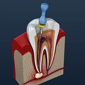 computer illustration of an infected tooth being treated