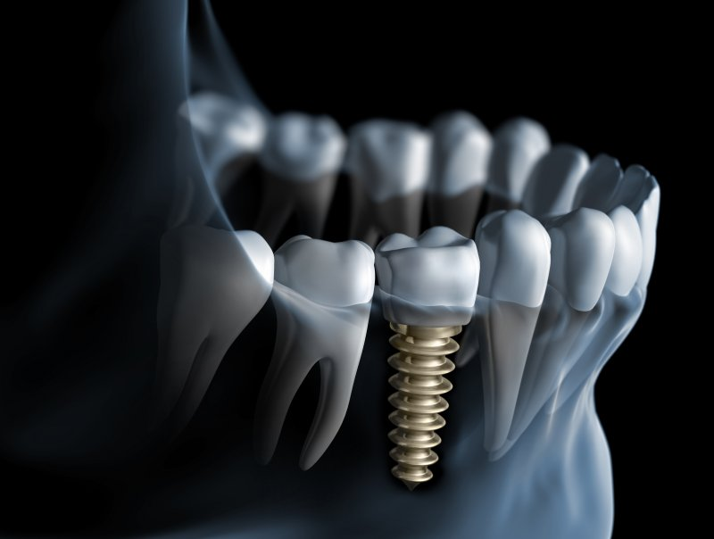 Digital dental implant illustration